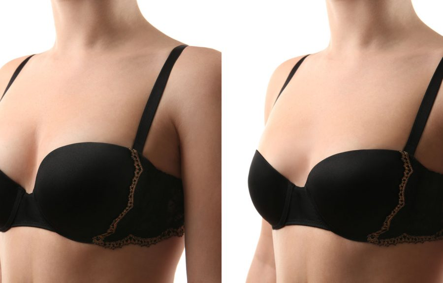 Breast Reduction Example
