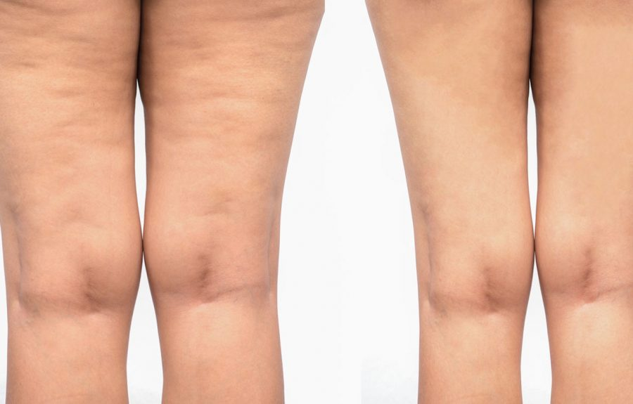 Cellulite Correction Before & After