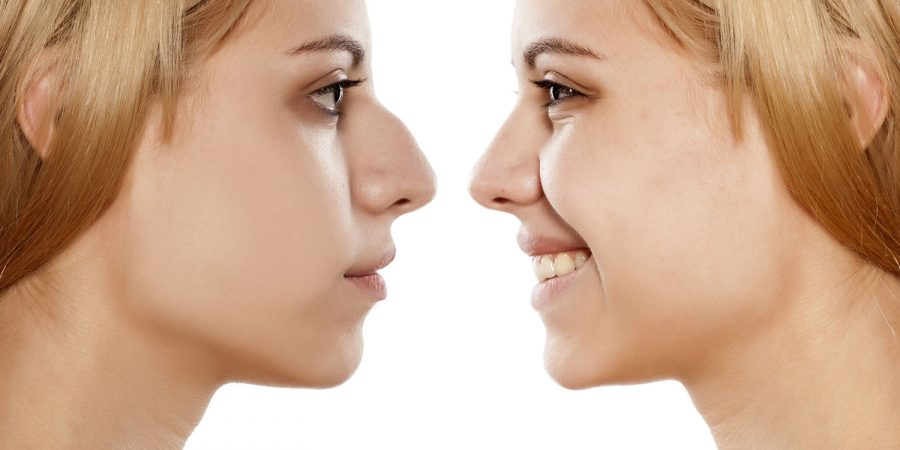 Nose Surgery Example