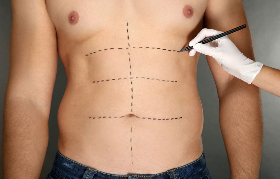 Tummy Tuck Example
