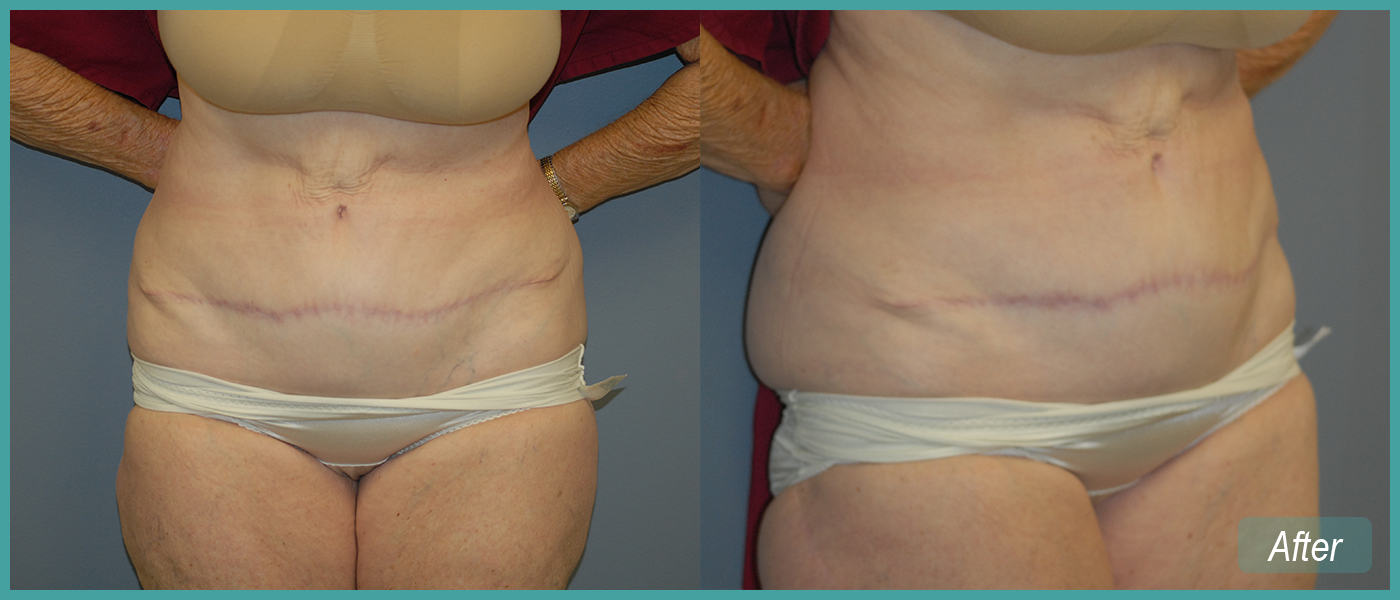 Abdominoplasty - After Images