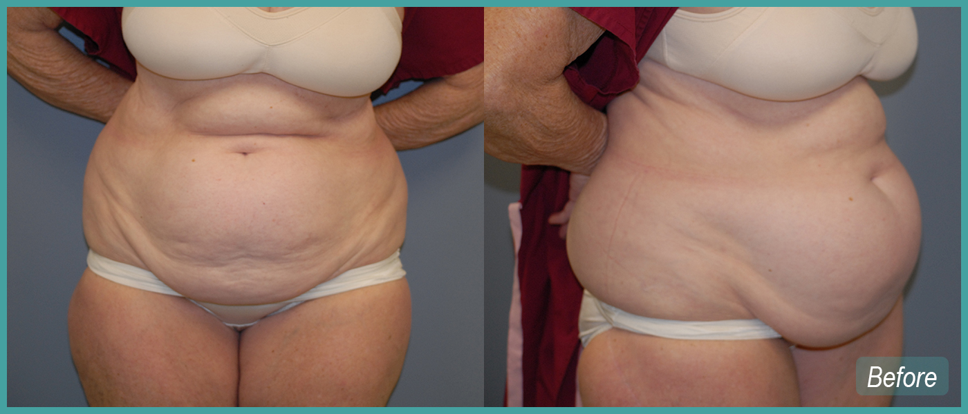 Abdominoplasty - Before Images