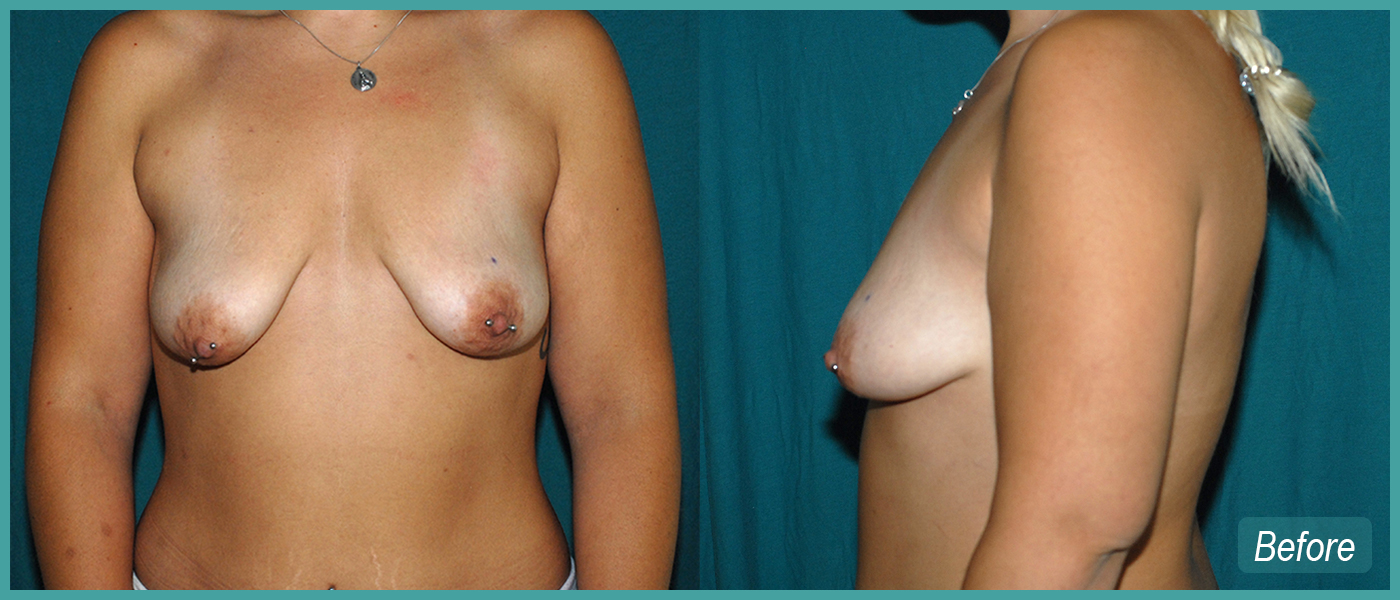 Breast Lift and Implants - Before Images