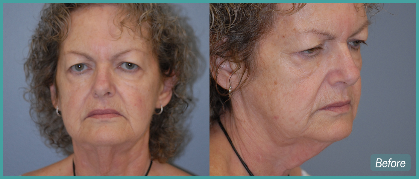 Face Lift & Peri Oral Peel - Before Images