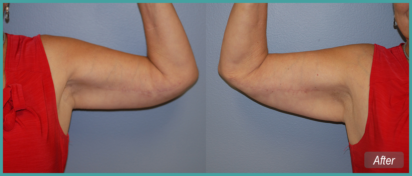 Bilateral Arm Lift - After