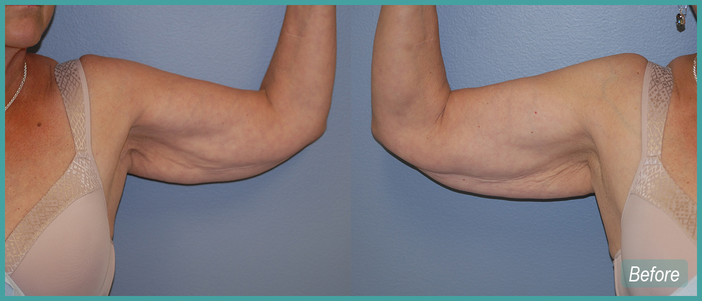 Bilateral Arm Lift - Before